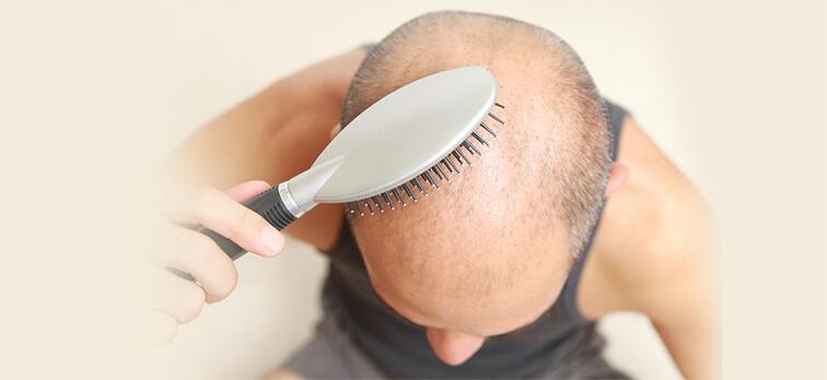 saç ekimi 9