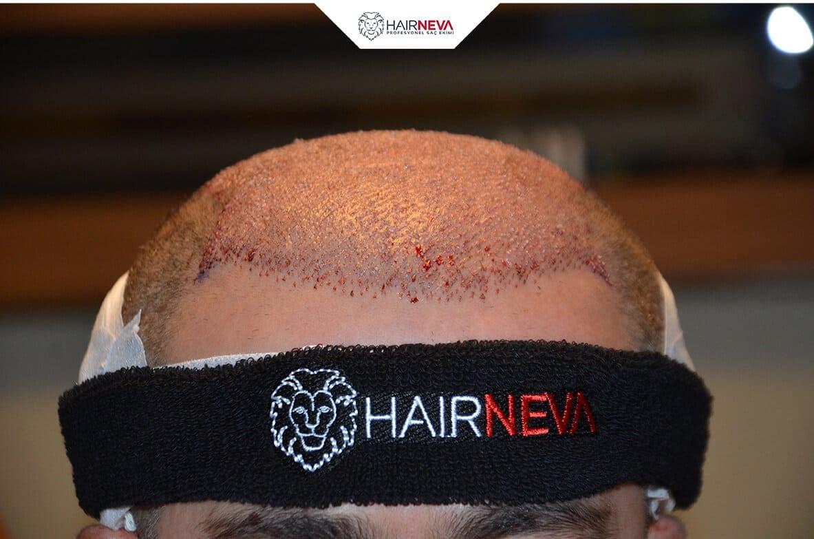Haartransplantationist eine Kunst