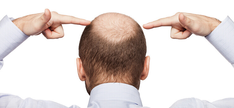 Hatalı saç ektirmenin kişiye vereceği zararlar nelerdir?