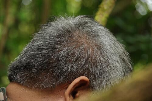 Beyaz Saç Tellerini Yok Etmenin Yollar (1)