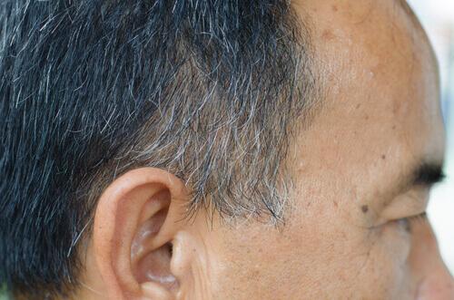 Beyaz Saç Tellerini Yok Etmenin Yollar (3)