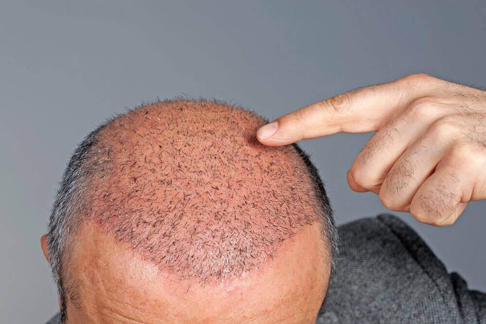 Saç Çizgisi Nasıl Olmalıdır?