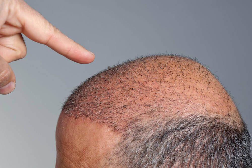 Saç Ekimi Öncesi ve Sonrası Öneriler