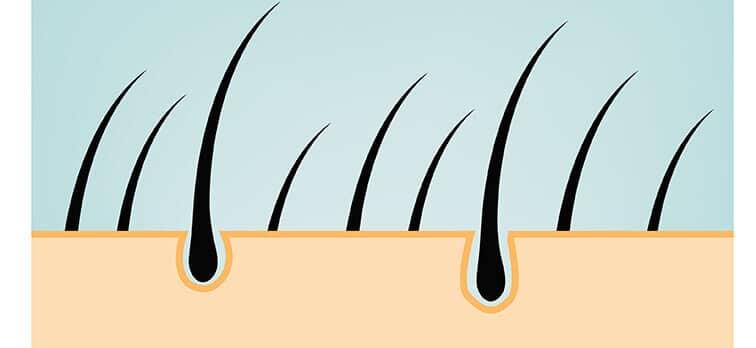 Saç ektirmede FUE tekniğinin avantajları ve dezavantajları nedir?