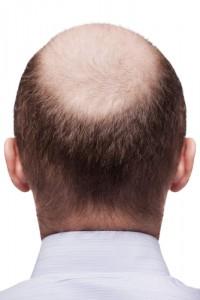 Saç Ekim Yöntemleri Nelerdir (1)