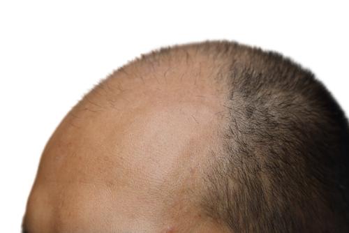Saç Ekim Yöntemleri Nelerdir (3)