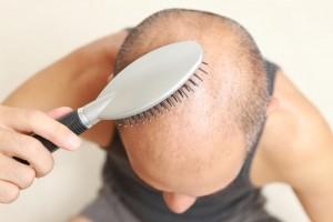 Saç Ekimi Sonrasında Saçlarım Tekrar Dökülür mü (2)