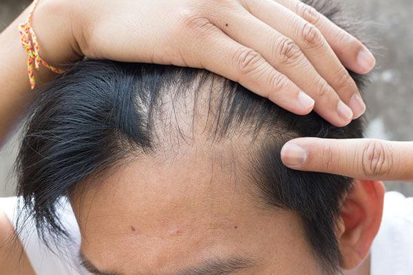 Saç Ekimi Sonrasında Saçlarım Tekrar Dökülür mü (3)